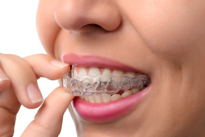 Metal Braces Have Your Teen Feeling Self-Conscious? Try Invisalign Teen