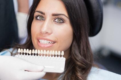 The Many Advantages to Choosing Dental Veneers